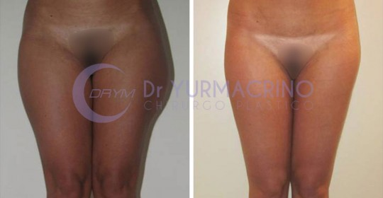 Legs/Buttocks Liposculpture – Case 20/A