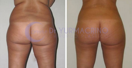 Legs/Buttocks Liposculpture – Case 22/B