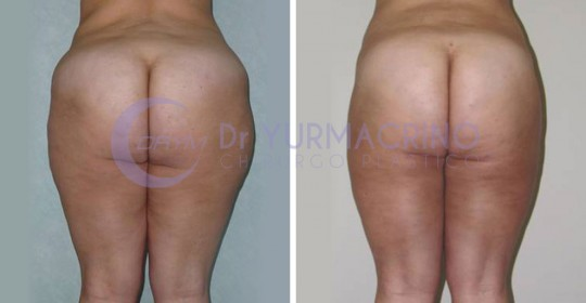 Legs/Buttocks Liposculpture – Case 23/B