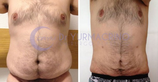 Man Liposculpture – Case 1/A