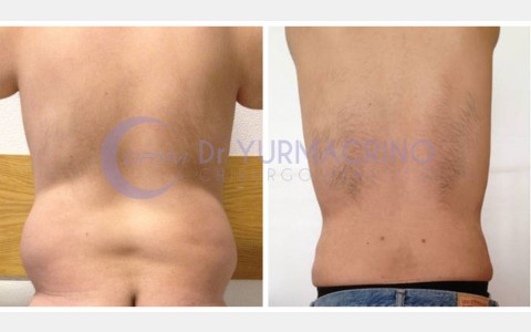 Man Liposculpture – Case 1/B