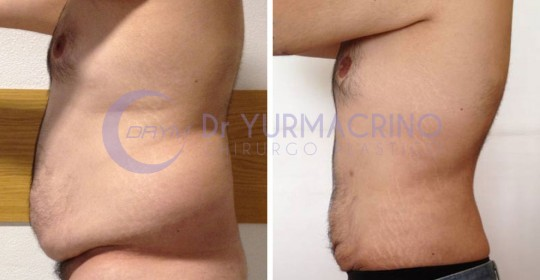 Man Liposculpture – Case 1/C