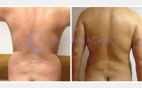 Man Liposculpture – Case 2/B