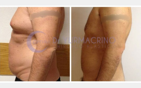 Man Liposculpture – Case 2/C