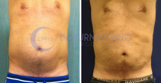 Man Liposculpture – Case 4/A
