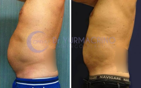 Man Liposculpture – Case 4/B