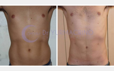 Man Liposculpture – Case 6/A