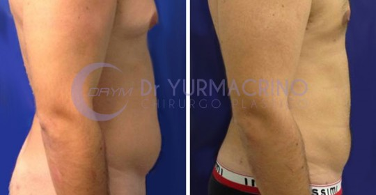 Man Liposculpture – Case 7/B