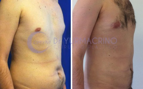 Man Liposculpture – Case 8/B