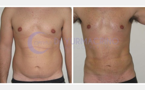 Man Liposculpture – Case 9