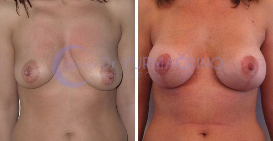 Mastopexy with Implants – Case 1/A