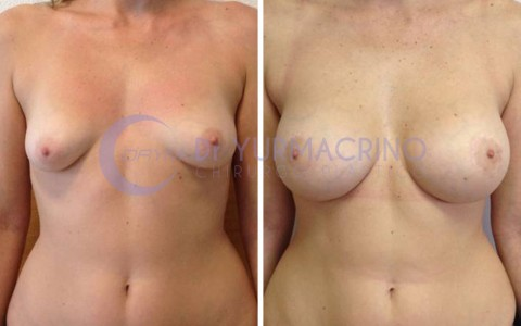 Mastopexy with Implants – Case 4/A
