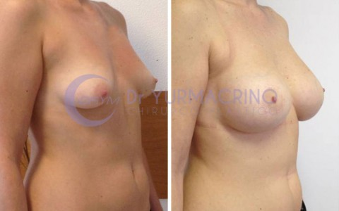 Mastopexy with Implants – Case 4/B