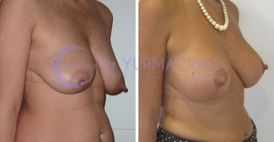 Mastopexy with Implants – Case 12/B