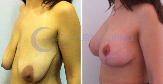 Mastopexy with Implants – Case 14/B