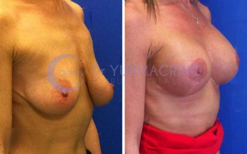 Mastopexy with Implants – Case 20/B