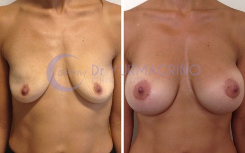 Mastopexy with Implants – Case 21/A