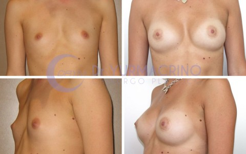 Breast Augmentation – Case 27