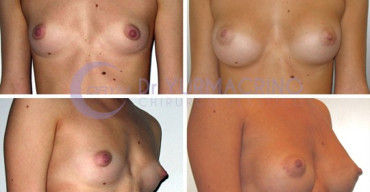 Breast Augmentation – Case 28