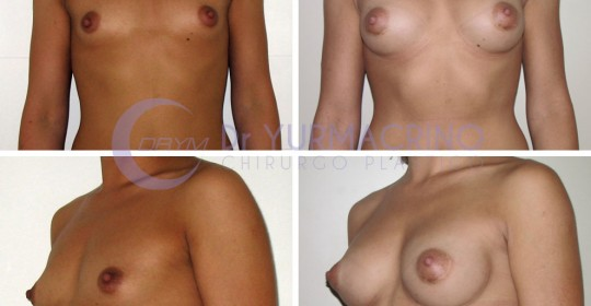 Breast Augmentation – Case 29