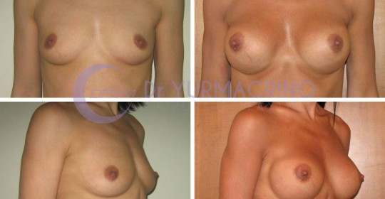 Breast Augmentation – Case 30