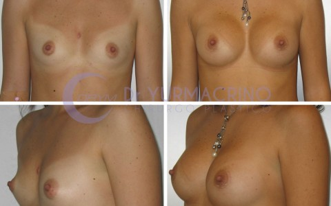 Breast Augmentation – Case 31