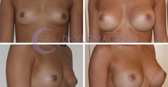 Breast Augmentation – Case 32