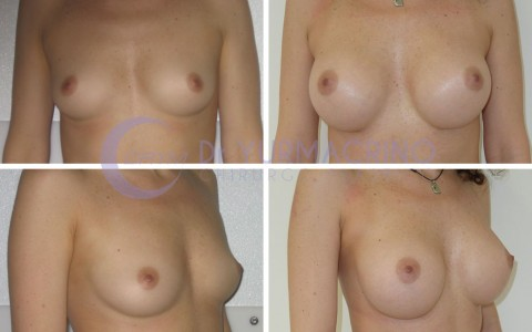 Breast Augmentation – Case 33