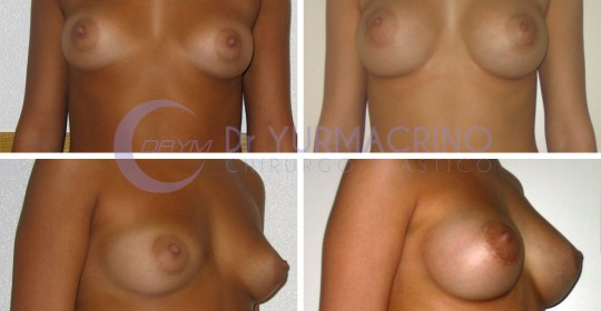 Breast Augmentation – Case 34
