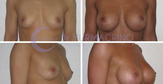Breast Augmentation – Case 35