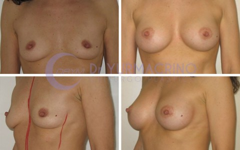 Breast Augmentation – Case 36