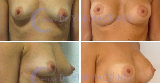 Breast Shape Correction – Case 12