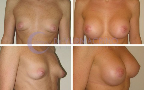 Breast Shape Correction – Case 13