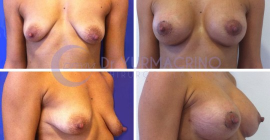 Breast Shape Correction – Case 14