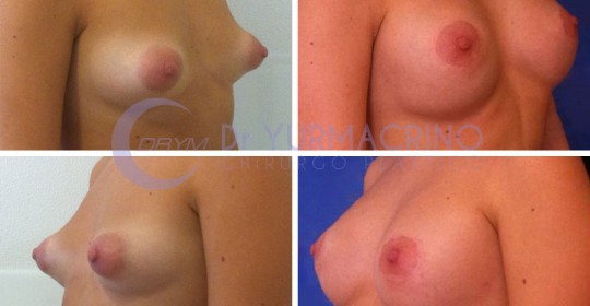 Breast Shape Correction – Case 15