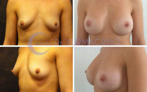 Breast Shape Correction – Case 16