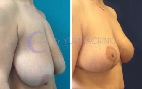 Breast Reduction – Case 2/A