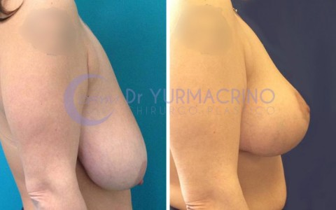 Breast Reduction – Case 2/B