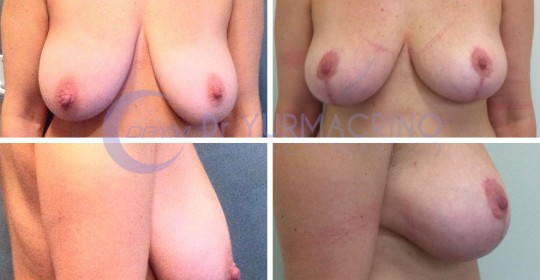 Breast Reduction – Case 3