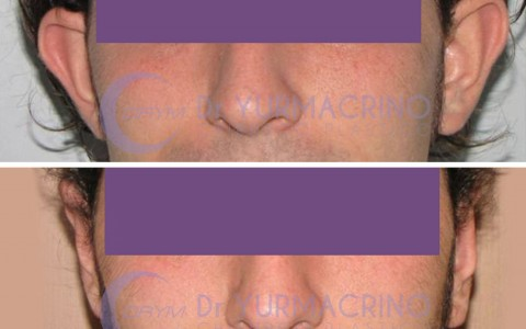Otoplasty – Case 3