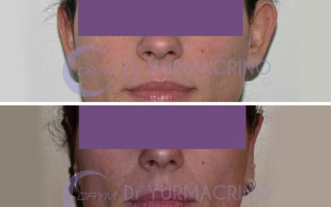 Otoplasty – Case 7