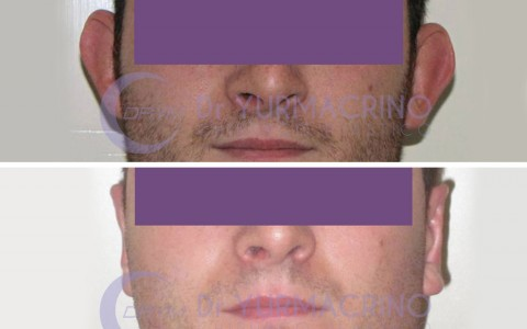 Otoplasty – Case 11