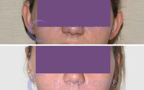 Otoplasty – Case 12
