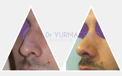 Men Rhinoplasty – Case 1/A