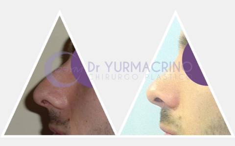 Men Rhinoplasty – Case 1/B