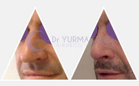 Men Rhinoplasty – Case 2/A