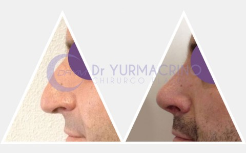 Men Rhinoplasty – Case 2/B