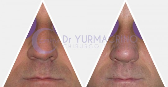 Men Rhinoplasty – Case 3/A