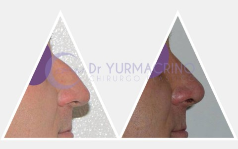 Men Rhinoplasty – Case 3/B