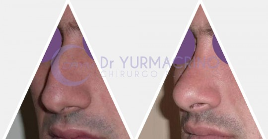 Men Rhinoplasty – Case 4/A